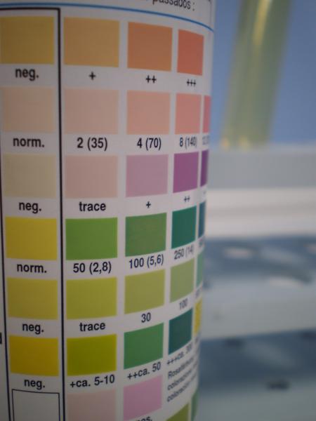 Laboratorio analisi Reggio Calabria Esame urine