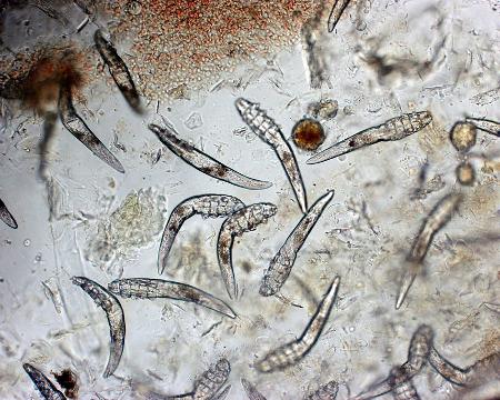 Laboratorio analisi Reggio Calabria Esame parassitologico